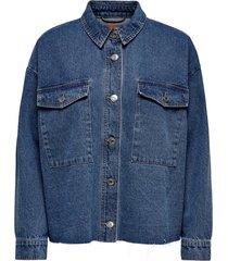 jeansjacke oversize